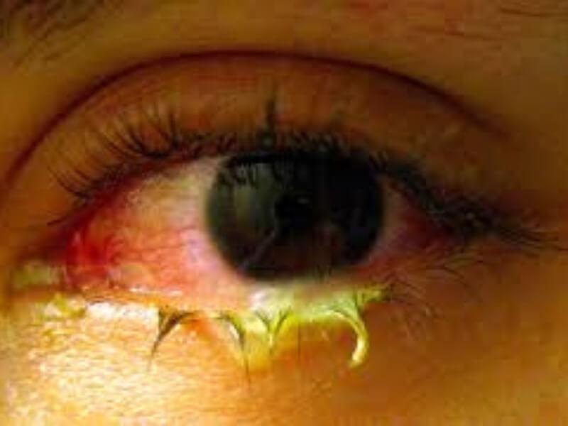 Conjuncitivitis inclusoria je deo okulogenitalne infekcije izazvane određenim serološkim tipovima Chlamydiae trachomatis. Konjunktiva novorođenčeta se inficira prolazom kroz porođajne kanale. Odrasli se najčešće zaraze seksualnim putem.