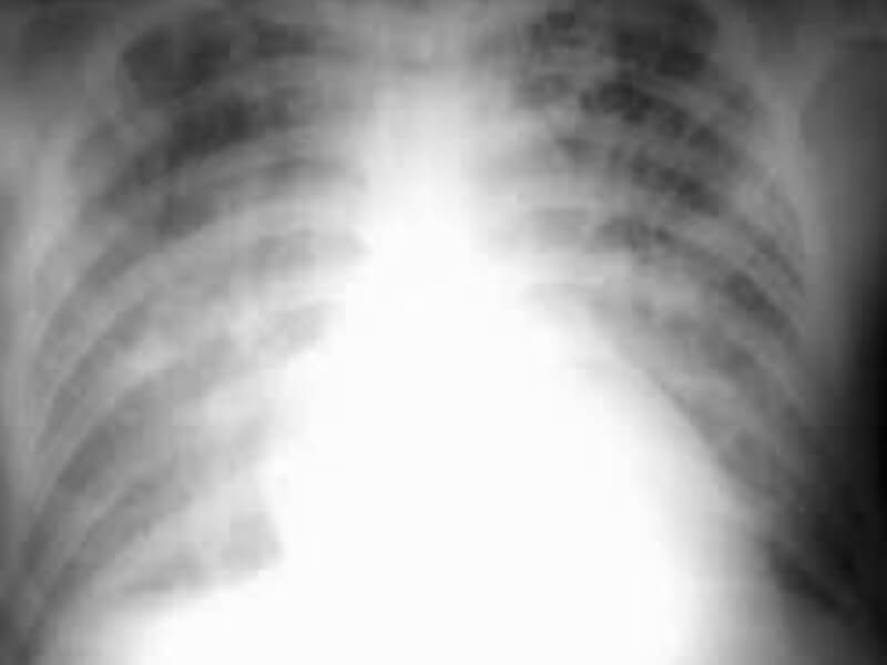 Akutni edem plućaje hitno dramatično stanje koje zahteva neodložnu i adekvatnu intervenciju, a karakteriše ga po život opasno nakupljanje tečnosti u plućima tj. u plućnim alveolama (zbog povišenog plućnog kapilarnog pritiska ili poremećene propustljivosti kapilarno - alveolarne membrane pluća).