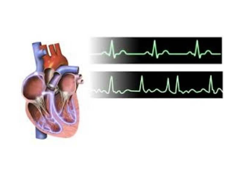 Atrijalni septalni defekt (ASD) predstavlja jednu od najčešće nalaženih urođenih srčanih mana kod odraslih. Defekt tipa sinus venosus je lokalizovan visoko na međupretkomorskoj pregradi, u blizini ušća vene cave superior.