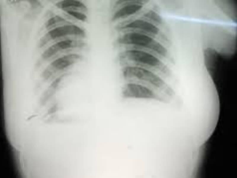 Dekstrokardija je stanje kod koga se srce nalazi sa desne, umesto sa leve strane i srčane šupljine su postavljene obrnuto. Pri tome su leva pretkomora i komora na desnoj strani, a desna pretkomora i komora na levoj.