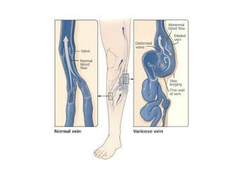 Flebotromboza je tromboza dubokih vena, najčešće nogu, a karakteriše se okluzijom lumena, inflamatornom reakcijom zida vene i čestom pojavom embolije.