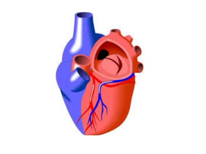 Insuficijencija zaliska plućne arterije omogućava vraćanje krvi iz plućne arterije u desnu komoru tokom dijastole.