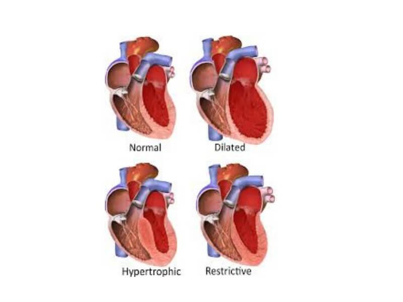 Restriktivna kardiomiopatija se odlikuje poremećenom dijastolnom relaksacijom komora, usled rigidnih zidova komora srca, čime je, onemogućeno njihovo adekvatno punjenje krvlju.
