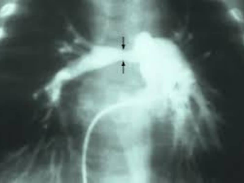 Stenoza plućne arterije predstavlja opstrukciju na nivou izlaznog trakta desne komore i relativno je česta urođena srčana malformacija.