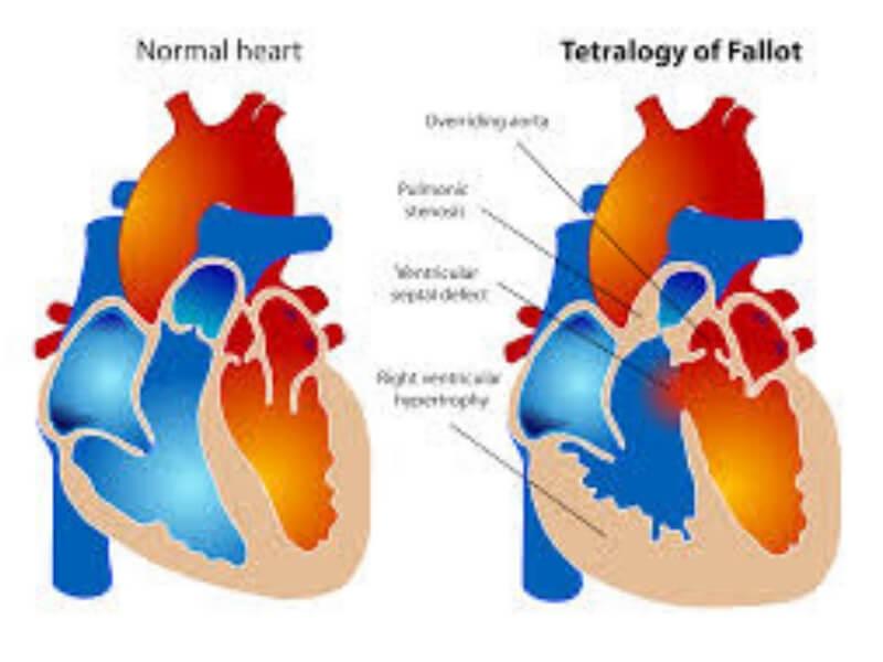 Tetralogija Fallot je najčešća cijanozna urođena srčana mana i predstavlja 10% svih urođenih anomalija.