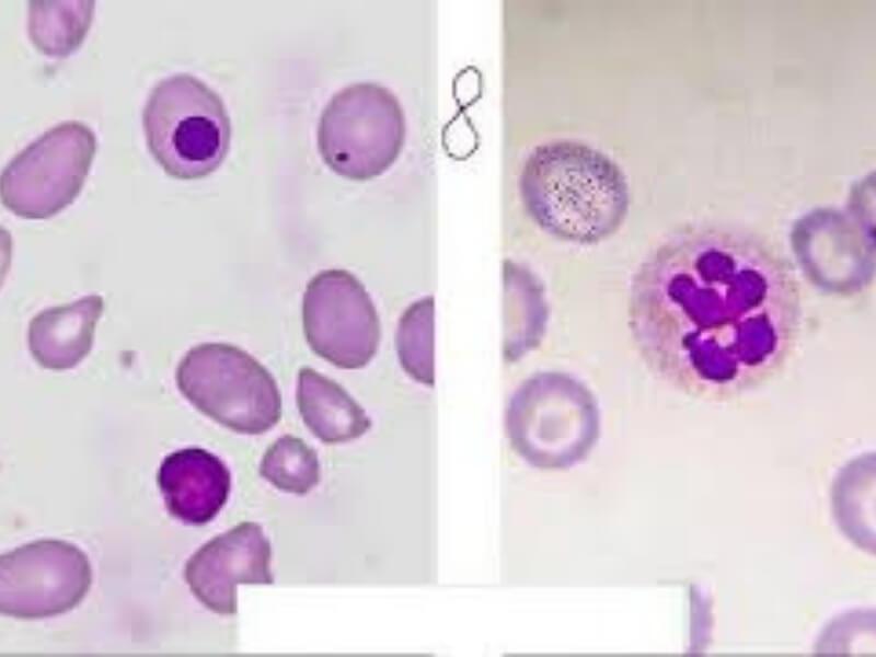 Megaloblastne anemije nastaju zbog smanjene sinteze DNK. Većina megaloblastnih anemija izazvana je nedostatkom vitamina B12 (perniciozna anemija) i/ili folne kiseline.