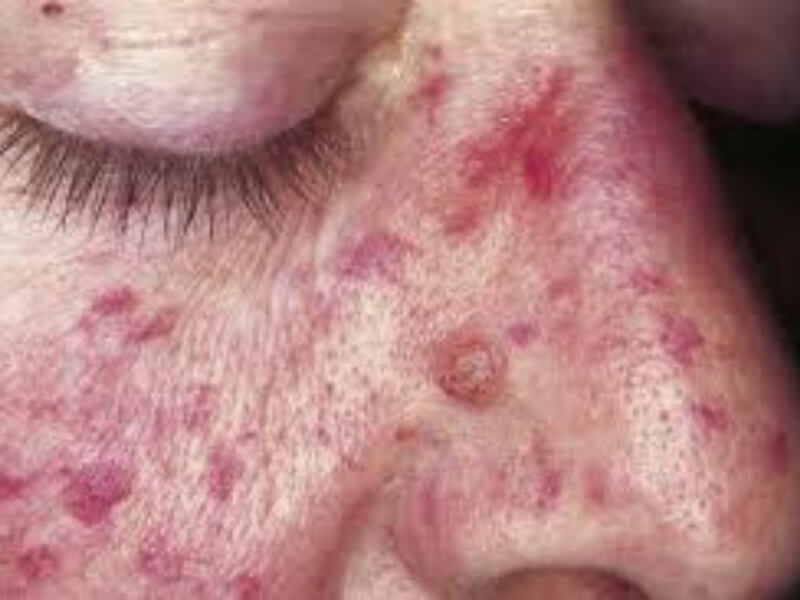 Nasledna hemoragijska teleangiektazija (Morbus Rendu-Osler-Weber) je najčešći nasledni vaskularni poremećaj hemostaze.