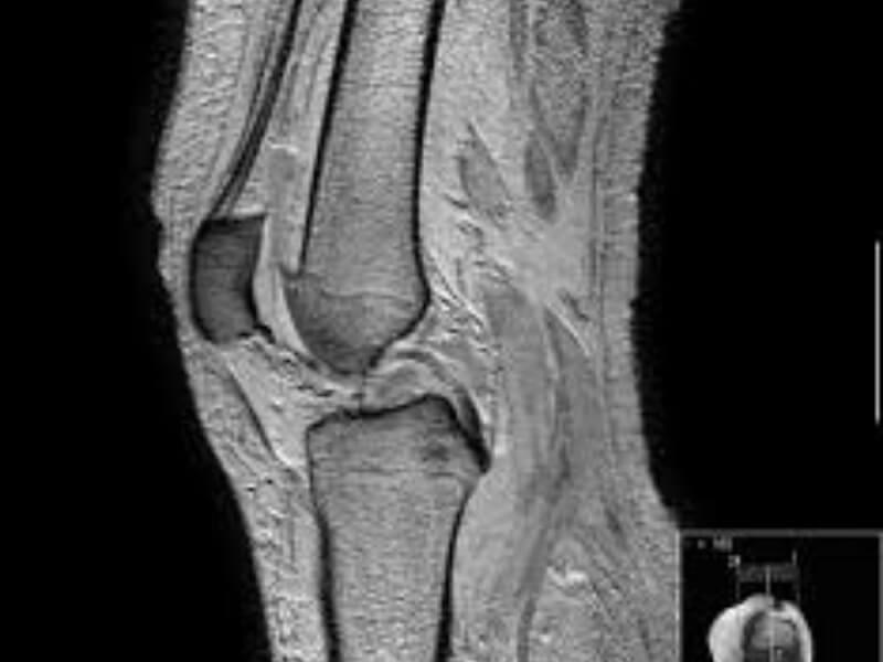 Gonartroza predstavlja artrozu kolenog zgloba. Artroza je degenerativna promena zglobne hrskavice, koja zatim uzrokuje promene i na ostalim delovima zgloba (zglobna čaura, kost), a pre ili posle se karakteriše bolom i oštećenom funkcijom zgloba.