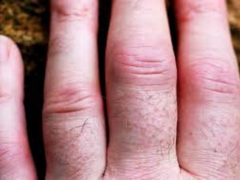 Piogeni (akutni bakterijski, septični) artritis spad u infekcijske artritise, koji su jedini među zapaljenskim oboljenjima zglobova u kojima je poznat uzročnik, koji se nalazi u samom zglobu i direktno izaziva zapaljenje.