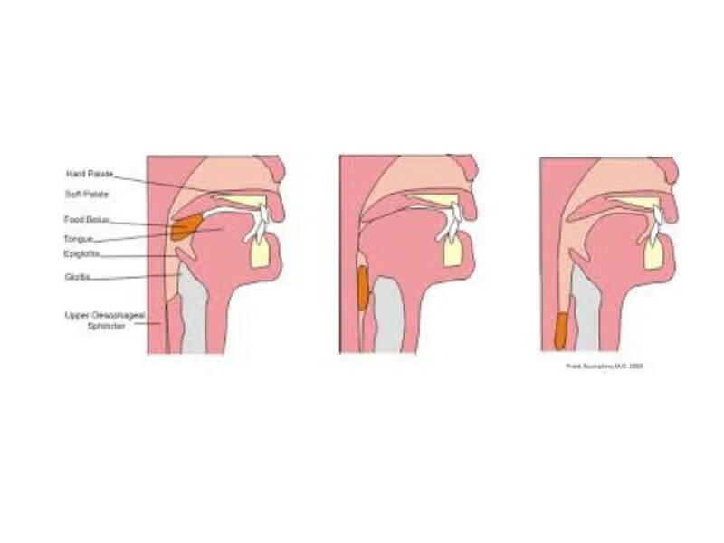 Strana tela dospevaju u hipofarinks (donji sprat ždrela) prilikom gutanja hrane, ukoliko je reč o prevelikom ili nedovoljno sažvakanom zalogaju ili o nekom tvrdom predmetu koji se nalazio u zalogaju.