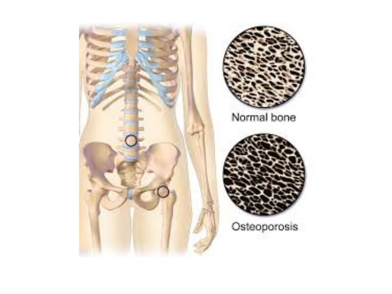 Postmenopauzna osteoporoza predstavlja postepeno smanjenje koštane mase i poremećaj kvaliteta kosti što dovodi do veće krtosti kostiju i fraktura. Najveći broj faktura se dešava kod postmenopauznih žena.