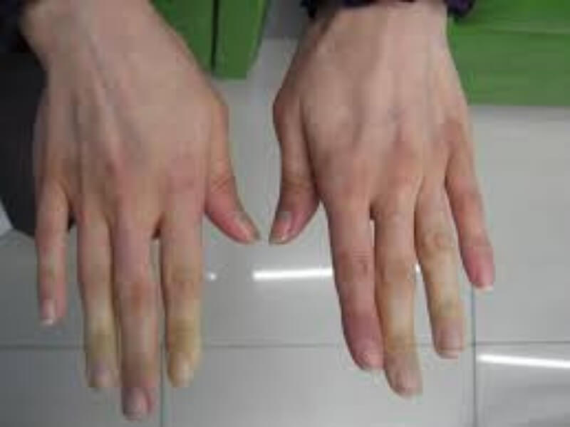 Termin sindrom u medicini označava skup više različitih simptoma i znakova bolesti. Švedski oftalmolog Henrik Sjögren je 1933 godine prvi opisao istovremeno prisustvo suvoće očiju i usta kod bolesnika sa hroničnim zapaljenjem zglobova - reumatoidnim artritisom.