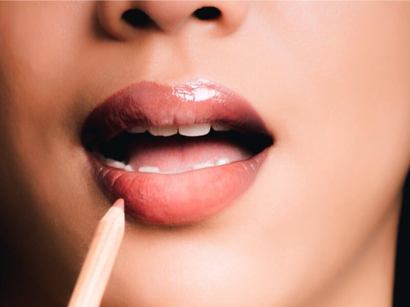Povećanje usana: Biopolimer ili hijaluron
