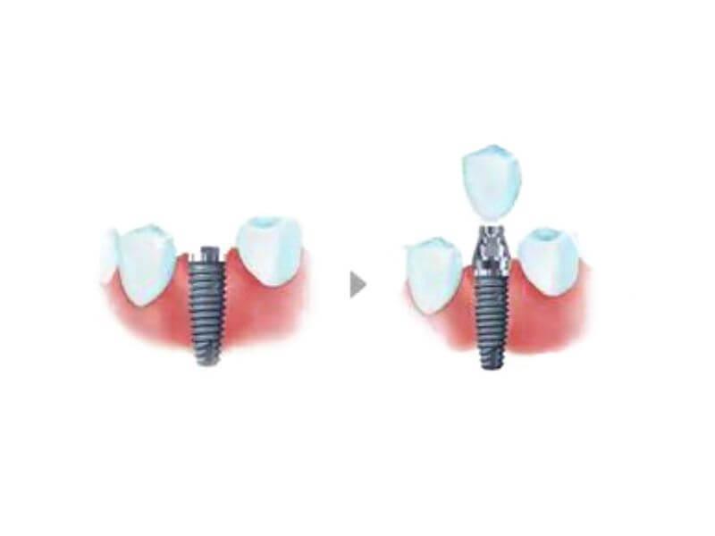 Zubni implant predstavlja šraf koji se ugrađuje u kost, abatment i same krunice, koja je jedini vidljivi deo implanta. Pročitajte sve informacije o zubnim implantima.