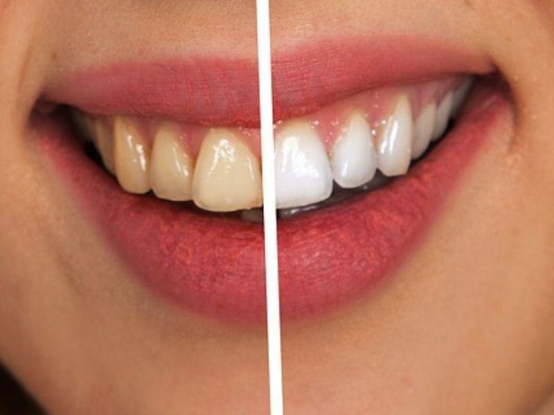 Kako se radi izbeljivanje zuba?