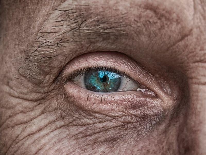 Komplikacije na oku kod dijabetičara