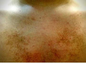 Veoma često nam u odrinaciju dolaze zbrinuti pacijenti I roditelji dece, a zbog promena na koži u vidu braonkastih mrlja koje se nalaze na vratu, grudnom košu  ramenima, zglobovima a koje ne prolaze na upotrebu vode I sapuna prilikom običnog  tuširanja?!