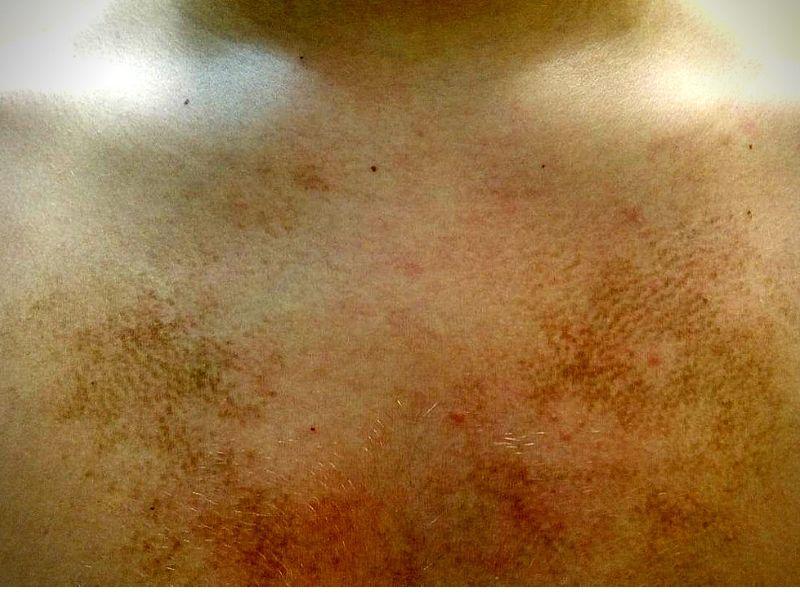 Terra firma forme dermatosis (TFFD)