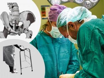 Operacija kuka je procedura u medicini kojom specijalista ortopedije hiruški otklanja bolni zglob i zamenjuje ga veštačkim. Ona se izvodi kada sve druge metode nisu dale rezultate, a za cilj ima da pacijenta oslobodi bola i omogući mu normalan pokret i olakšano hodanje.