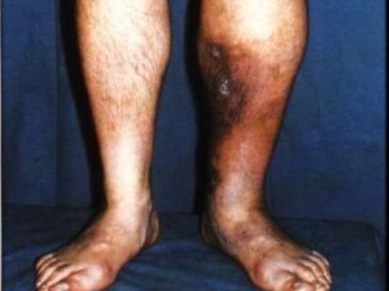 Duboka venska Tromboza (Trombophlebitis profunda)