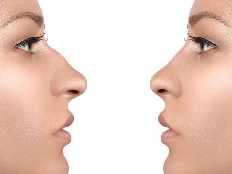 Operacija nosa (Korekcija nosa - Rinoplastika)