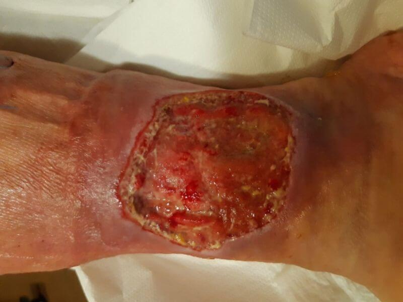 Lečenje hroničnih rana - multidisciplinarni pristup