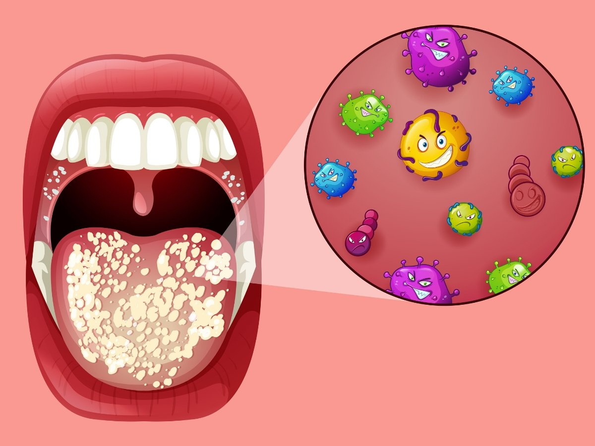 Kandida - uzroci, simptomi i lečenje