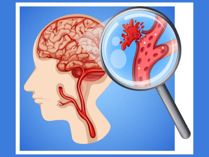 Šta raditi nakon moždanog udara?