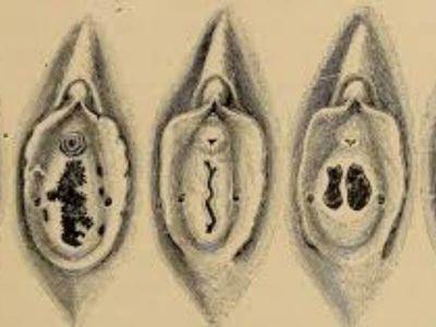 Hymen imperforatus je urođena anomalija u vidu opne između introitusa vagine i vagine.