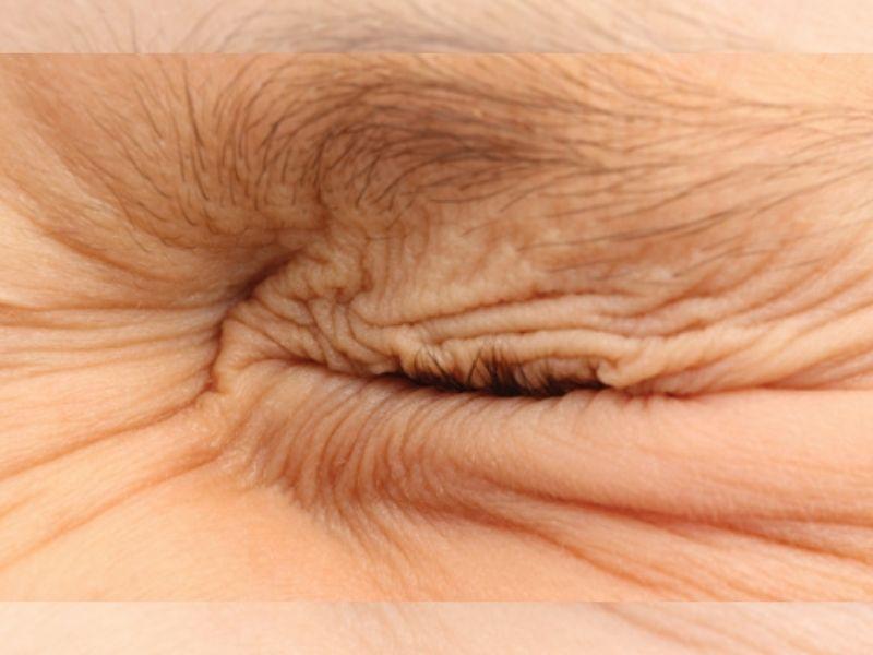 Blefarospazam - dijagnoza, vrste, lečenje