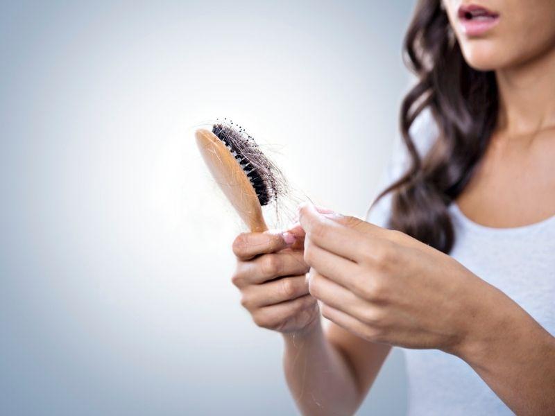 Značajno opadanje kose nakon infekcije Korona virusom