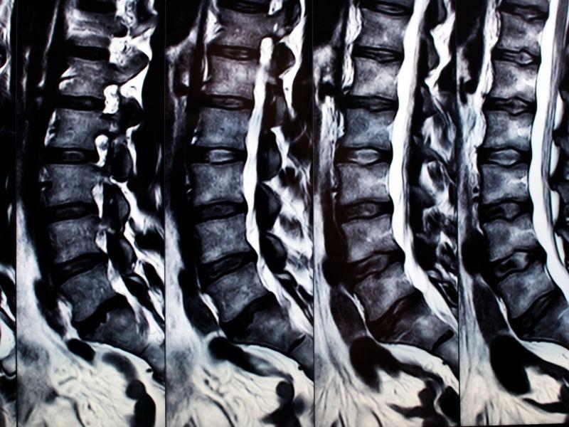Magnetna rezonanca kičme (MR kičme)