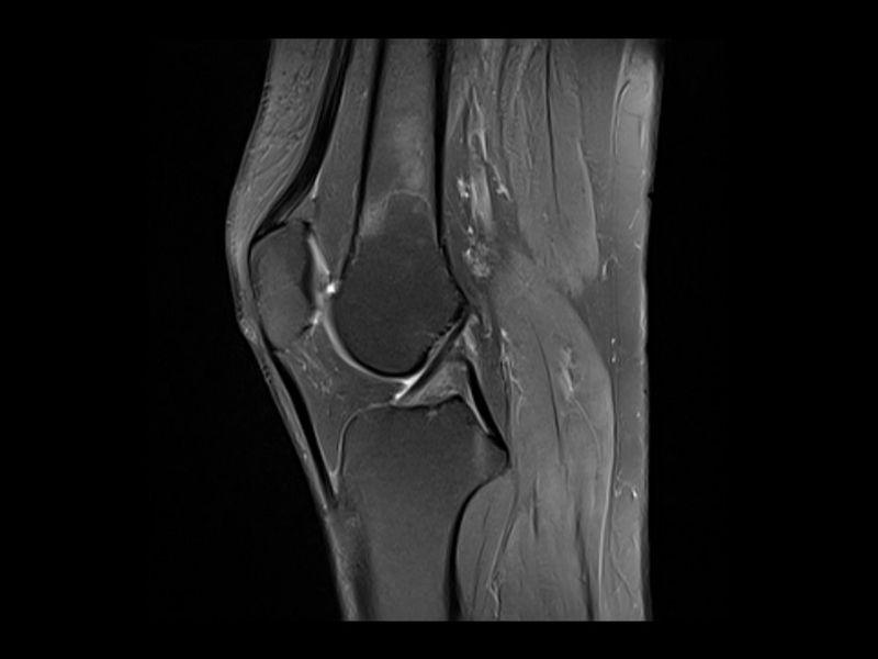 Magnetna rezonanca kolena (MR kolena)