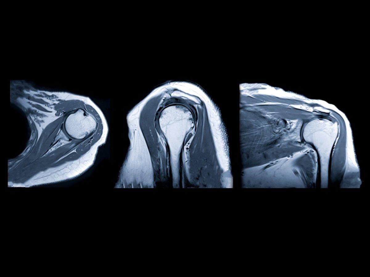 Magnetna rezonanca ramena (MRI ramena)