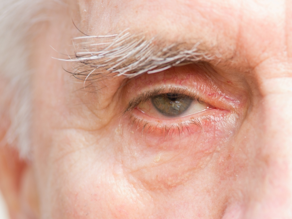 Senilna degeneracija makule (SDM) – vlažna (neovaskularna) SDM