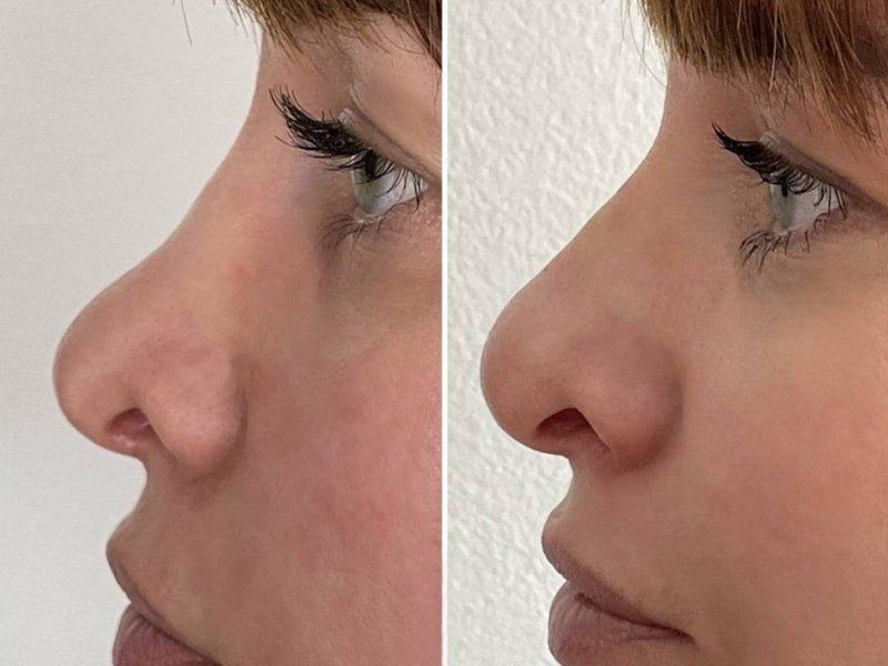 Nehiruška korekcija nosa (Korekcija nosa hijaluronom)