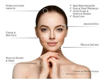 PRP je biološki tretman sopstvenom krvn0m plazmom, obogaćenom trombocitima, koja u sebi sadrži faktore rasta i proteine koji pomažu regeneraciju tkiva i stimulaciju stvaranja kolagena. Koristi se za poboljšanje izgleda i kvaliteta kose, u lečenju nekih vrsta alopecije (gubitak kose), za smanjivanje znakova starenja kože na šakama, uspešan je kod svih formi akni i ožiljaka, a može poboljšati izgled starih ožiljaka i strija.