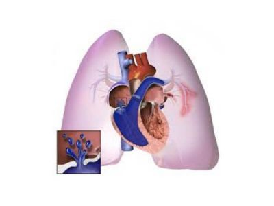 Primarna plućna hipertenzija (PPH) označava povećanje pritiska u arterijskom delu plućne vaskularne mreže čiji uzrok nije poznat. Zbog toga se ova vrsta plućne hipertenzije naziva idiopatskom, esencijalnom, a najčešće primarnom.