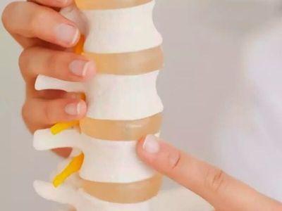 Do diskus hernije najčešće dolazi prilikom podizanja tereta sa savijenom kičmom, rotatornim pokretima kičme, a na duže staze - lošim držanjem, mišićnom slabošću i disbalansom.