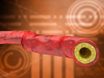 Ateroskleroza je difuzno oboljenje arterijskih krvnih sudova koje zahvata sva vaskularna korita i karakteriše se zadebljanjem i otvrdnućem arterijskog zida.