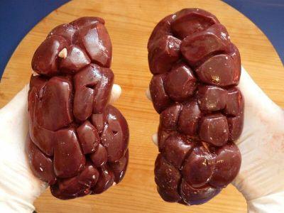 Povrede bubrega su retke. One se javljaju kao zatvorene povrede i obično su udružene sa povredama drugih organa (jetra, slezina) koje daju mnogo izraženije simp