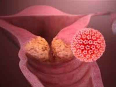 Postoji preko 80 identifikovanih papiloma virusa koji prouzrokuju nekoliko različitih vrsta bradavica kod ljudi: kožne, plantarne, ravne i laringealne papilome, a 30 izaziva polne kondilome.