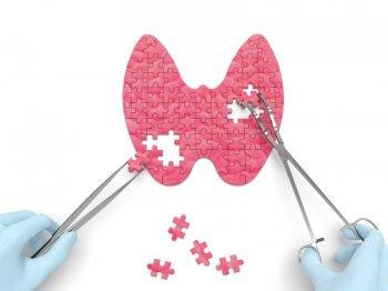 Dijagnostika nodusa štitaste žlezde