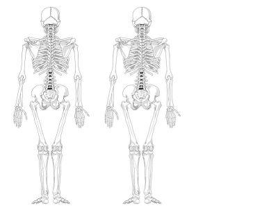 DEXA je brza i bezbolna dijagnostička procedura. Rutinska evaluacija se vrši na svake dve godine da bi se zapazile uočljivije promene u mineralnoj gustini kostiju (smanjenje ili povećanje) mali broj pacijenata koji su na visokoj steoridnoj terapiji treba da se podvrgavaju ovom pregledu na svakih 6 meseci.