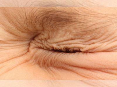 Blefarospazam je hronično stanje koje se često progresivno pogoršava. Manifestuje se grčenjem očnih kapaka odnosno kao nekontrolisano treptanje oka.