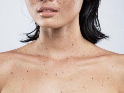 Svaka peta osoba tokom života oboli od bazocelularnog karcinoma kože, a godišnji porast broja obolelih je 3-6%. Na pojavu ovog karcinoma utiče najviše izlaganje štetnom UV zračenju, a pored toga pol, boja kože i kose. Ukoliko se pravovremeno tretira, ovaj karcinom kože uspešno se leči operativnim putem.