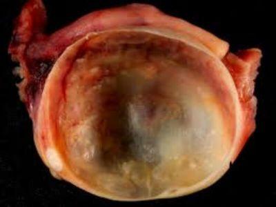 Ciste su patološke promene, obavijene kapsulom, ispunjene tečnošću ili polučvrstim sadržajem, a nalaze se u jajniku ili na njemu. Luteinske ciste nastaju uvećanjem žutog tela i njegovim ispunjavanjem tečnošću.