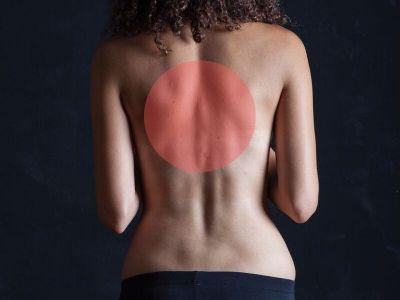 Kifoza predstavlja deformitet kičmenog stuba sa posteriornim izbočenjem, najčešće u torakalnom delu kičme.