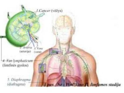 Cilj obeležavanja Svetskog dana borbe protiv limfoma je podizanje nivoa informisanosti o ovoj ozbiljnoj bolesti koja često nije prepoznata. Procenjuje se da je broj obolelih dva do tri puta veći u odnosu na broj dijagnostikovanih.