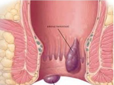 Hemoroidi ili šuljevi su otečeni, ali normalno prisutni krvni sudovi u i oko anusa (čmara) i donjeg dela rektuma, koji su prošireni pod pritiskom, slično kao i proširene vene na nogama.